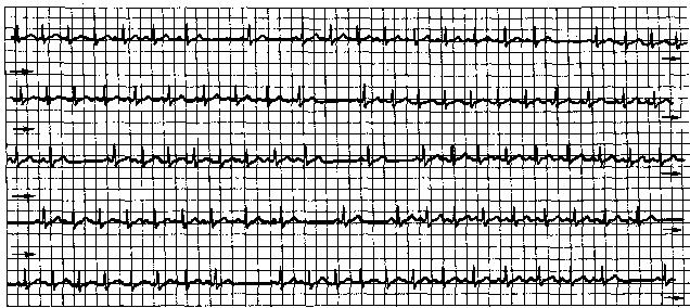 кардиограмма синусовая тахикардия