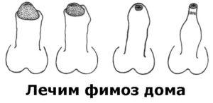 Степени фимоза у мальчиков и мужчин