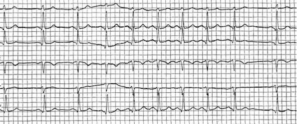 кардиограмма синусовая аритмия