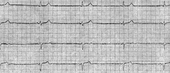 кардиограмма синусовая брадикардия