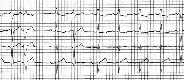 кардиограмма экстрасистолия