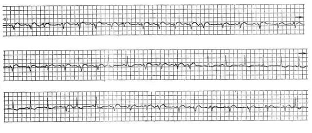 кардиограмма синдром слабости синусового узла