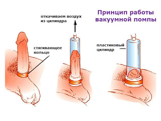 Демонстрируем эффект вакуумной помпы