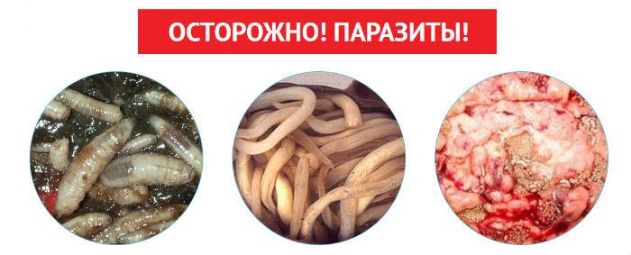 подкожные паразиты паразитирующие у человека симптомы фото гадов